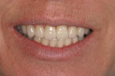 Coolum Beach Dental